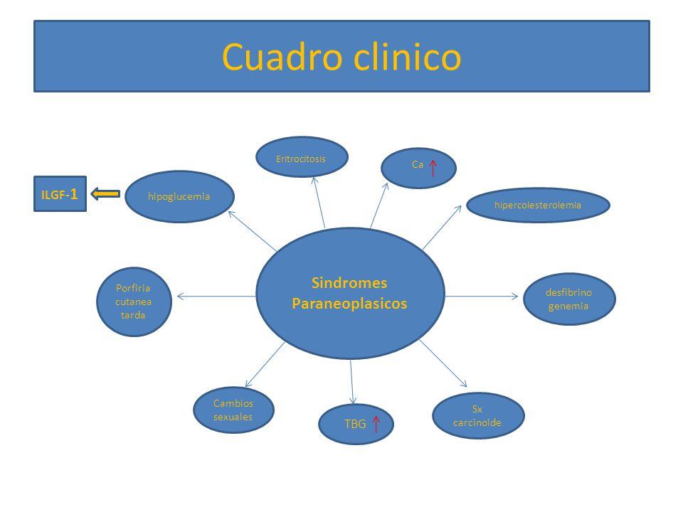 Sindromes Paraneoplasicos