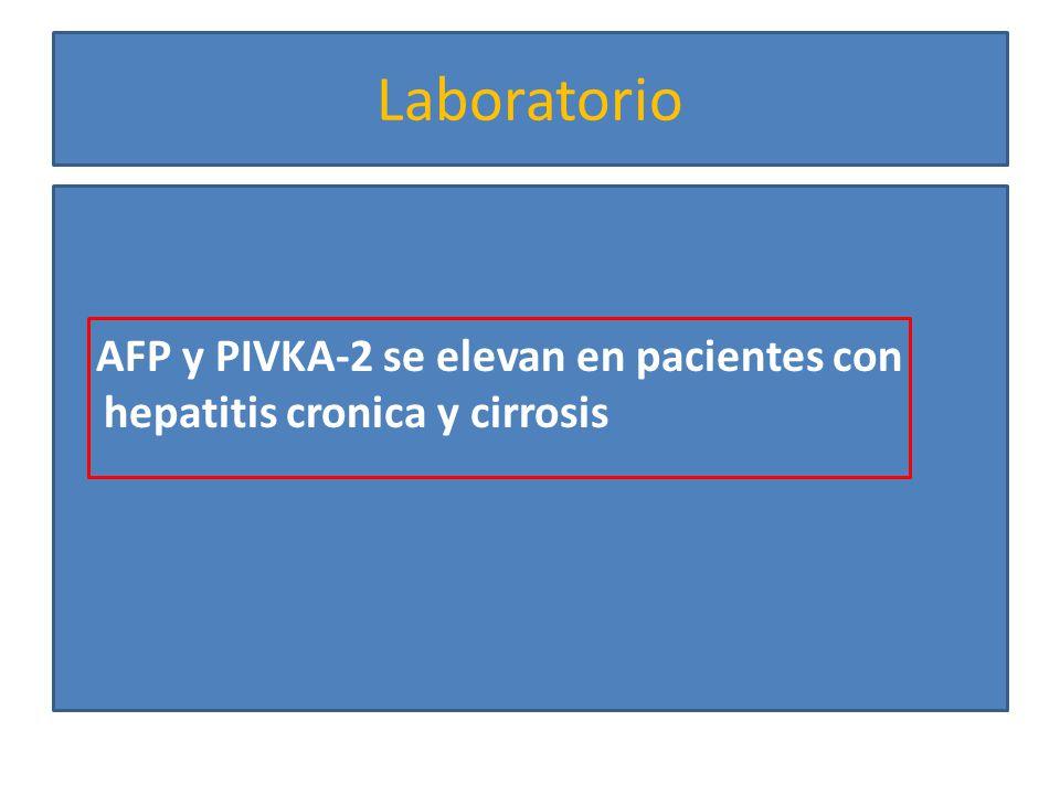 Laboratorio AFP y PIVKA-2 se elevan en pacientes con hepatitis cronica y cirrosis