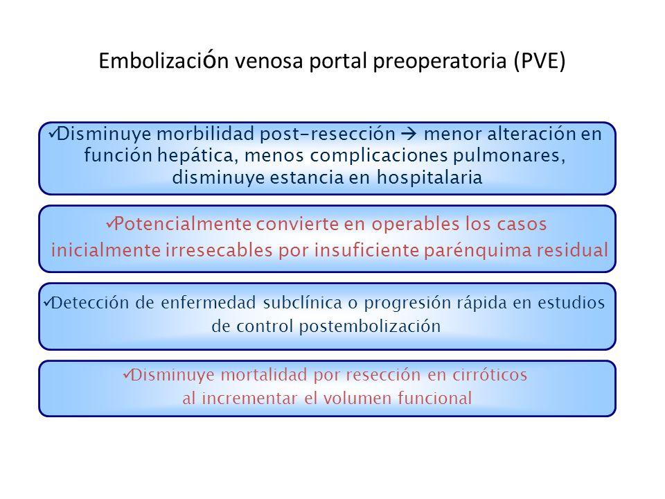 Embolización venosa portal preoperatoria (PVE)