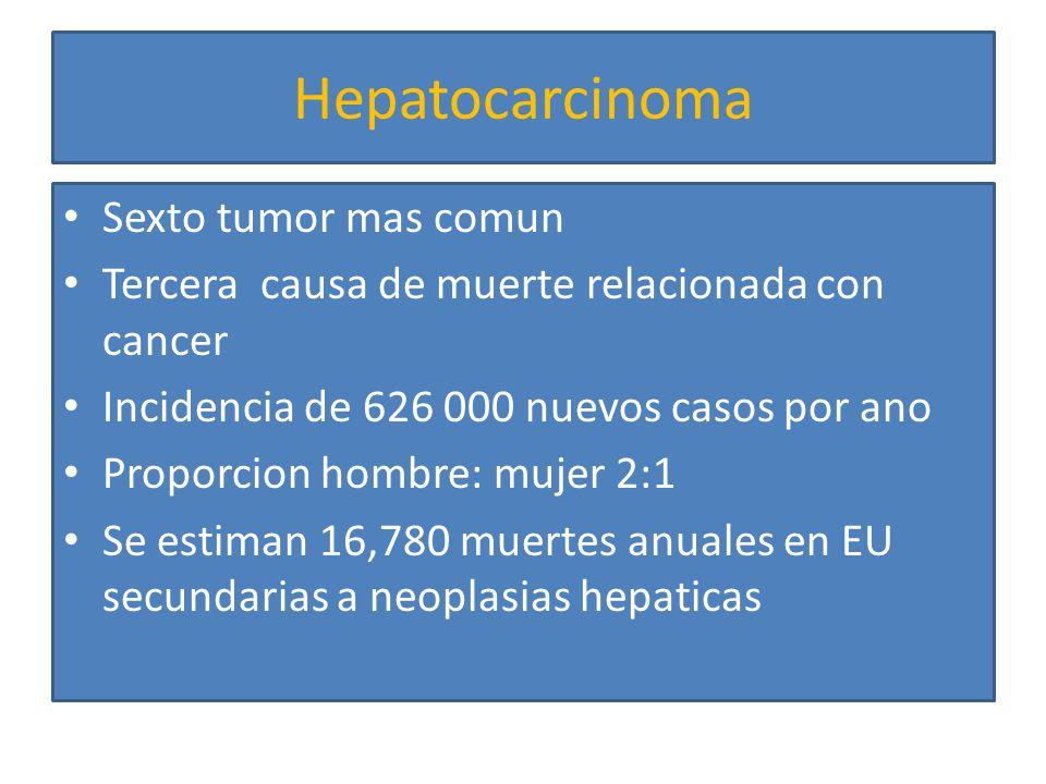 Hepatocarcinoma Sexto tumor mas comun