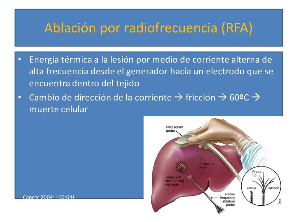 Ablación por radiofrecuencia (RFA)