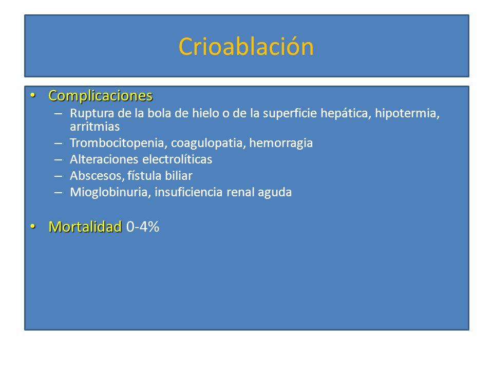 Crioablación Complicaciones Mortalidad 0-4%