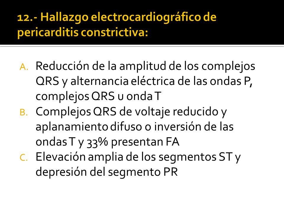 12.- Hallazgo electrocardiográfico de pericarditis constrictiva: