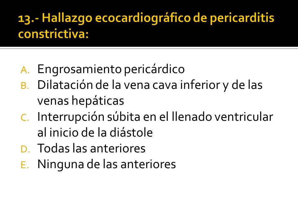 13.- Hallazgo ecocardiográfico de pericarditis constrictiva: