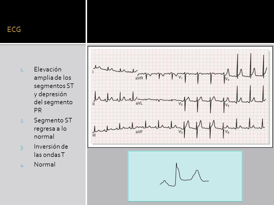ECG Elevación amplia de los segmentos ST y depresión del segmento PR