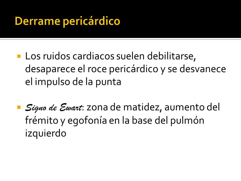 Derrame pericárdico Los ruidos cardiacos suelen debilitarse, desaparece el roce pericárdico y se desvanece el impulso de la punta.