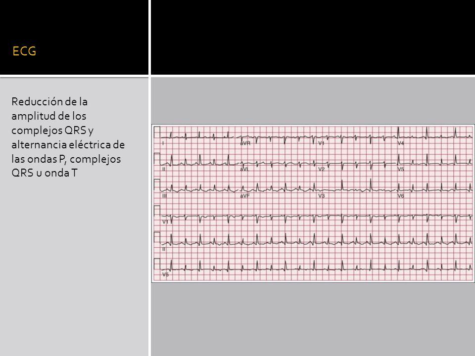 ECG Reducción de la amplitud de los complejos QRS y alternancia eléctrica de las ondas P, complejos QRS u onda T.