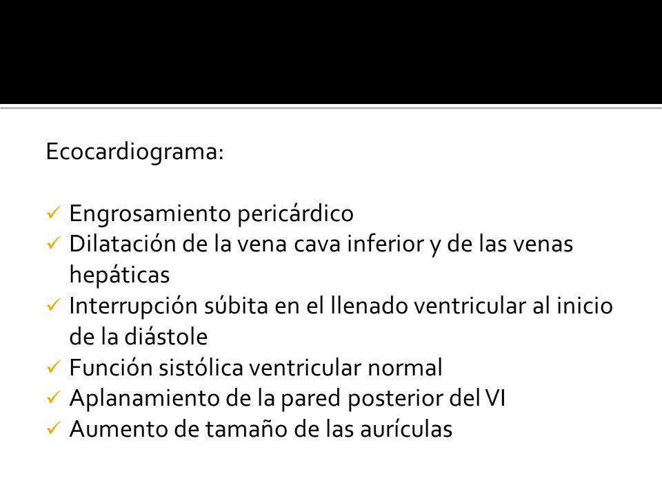 Ecocardiograma: Engrosamiento pericárdico. Dilatación de la vena cava inferior y de las venas hepáticas.