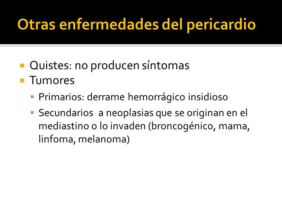 Otras enfermedades del pericardio