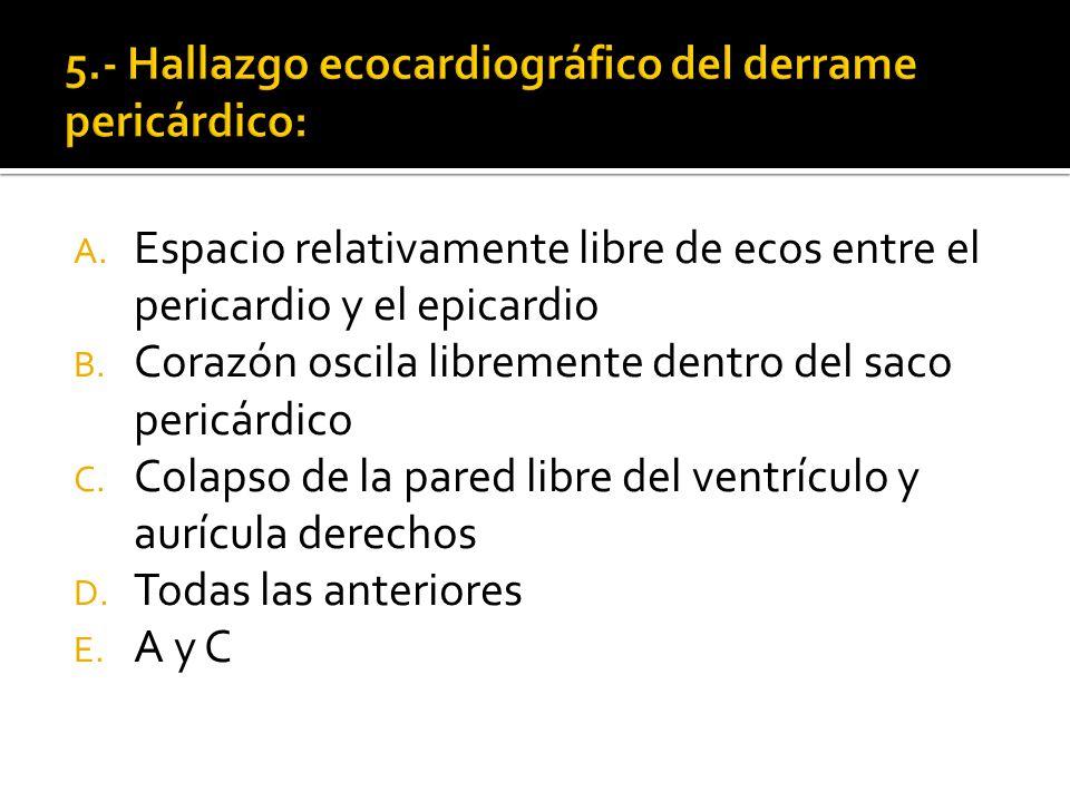 5.- Hallazgo ecocardiográfico del derrame pericárdico: