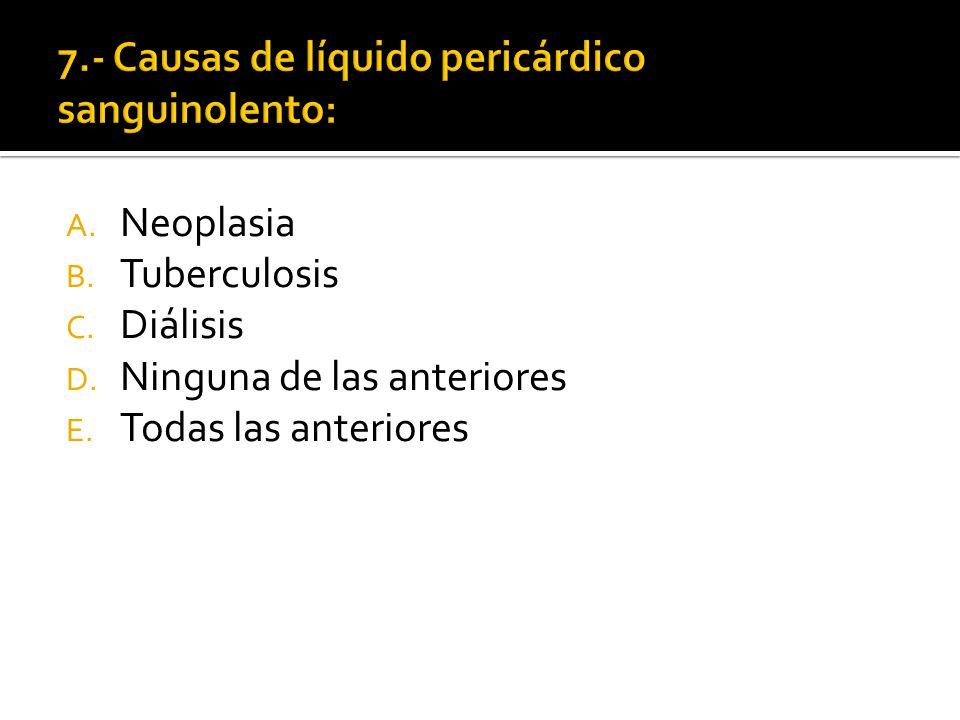 7.- Causas de líquido pericárdico sanguinolento: