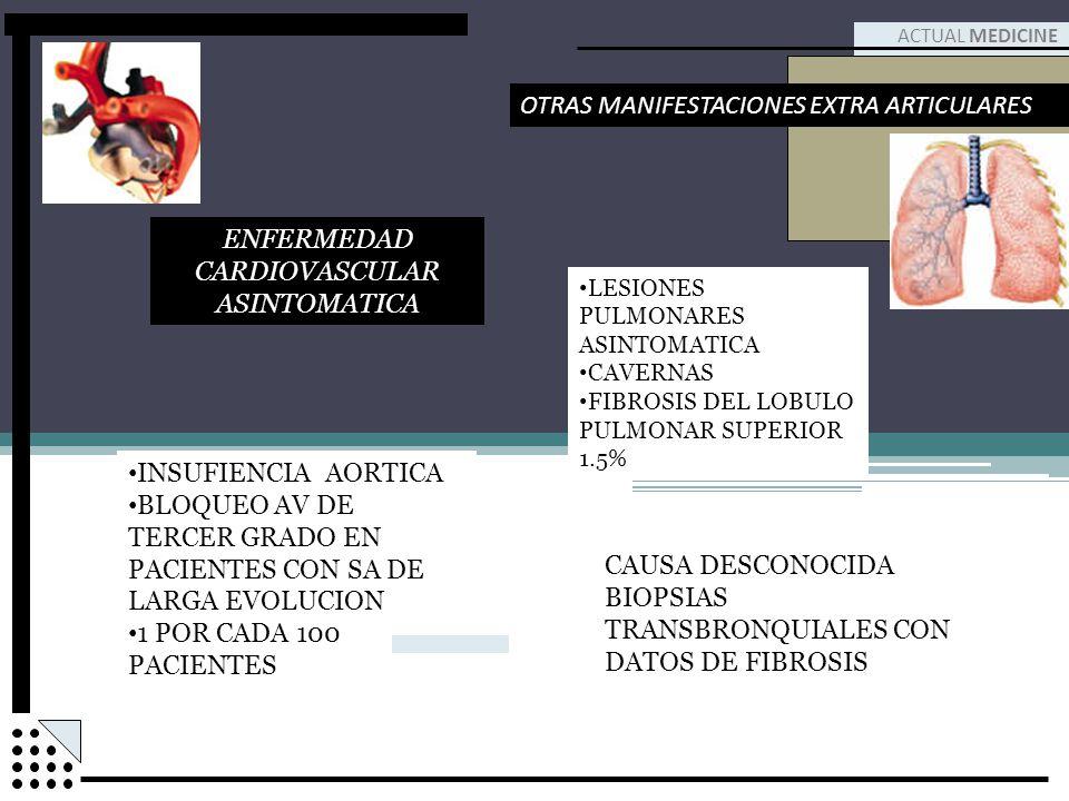 ENFERMEDAD CARDIOVASCULAR ASINTOMATICA