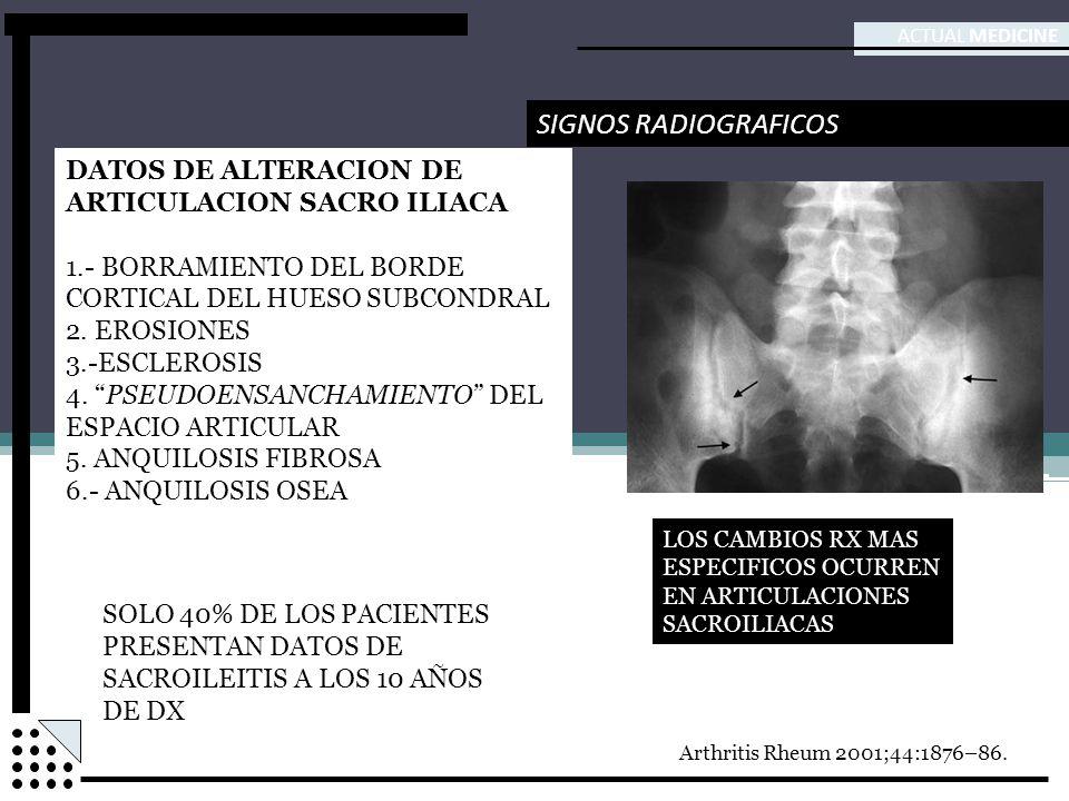 SIGNOS RADIOGRAFICOS DATOS DE ALTERACION DE ARTICULACION SACRO ILIACA