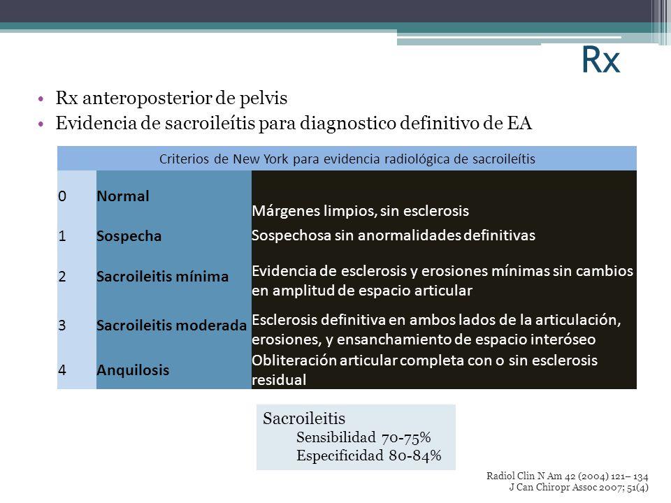 Criterios de New York para evidencia radiológica de sacroileítis