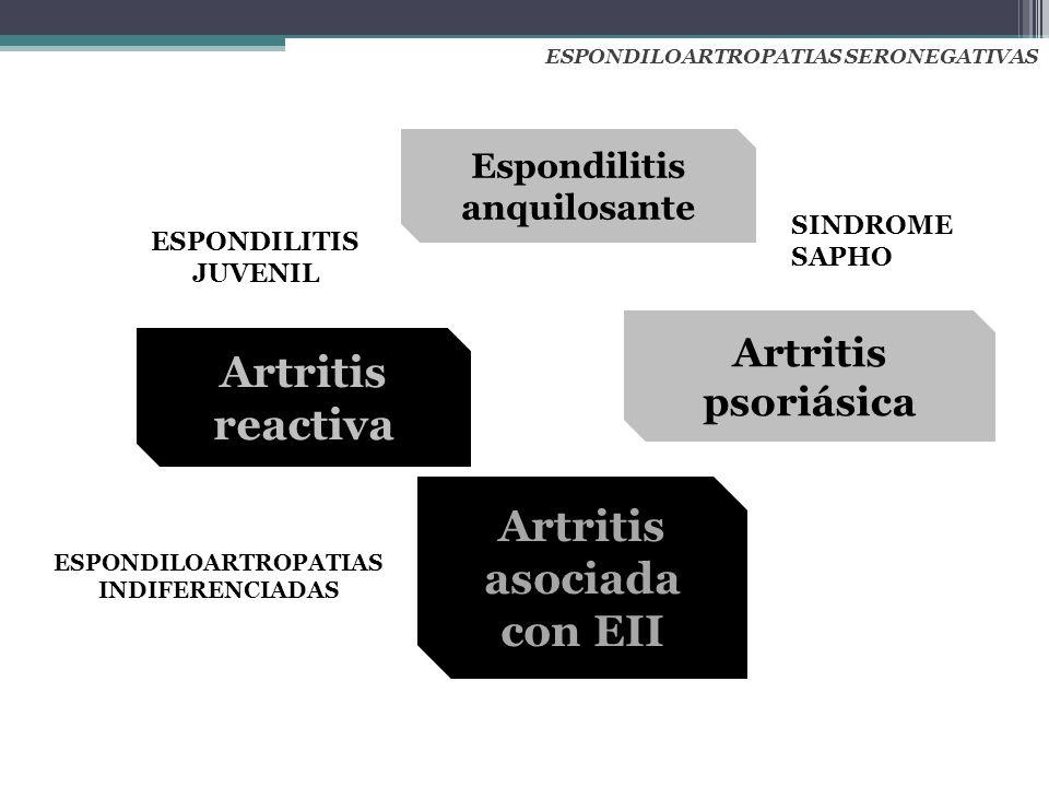 Espondilitis anquilosante Artritis asociada con EII