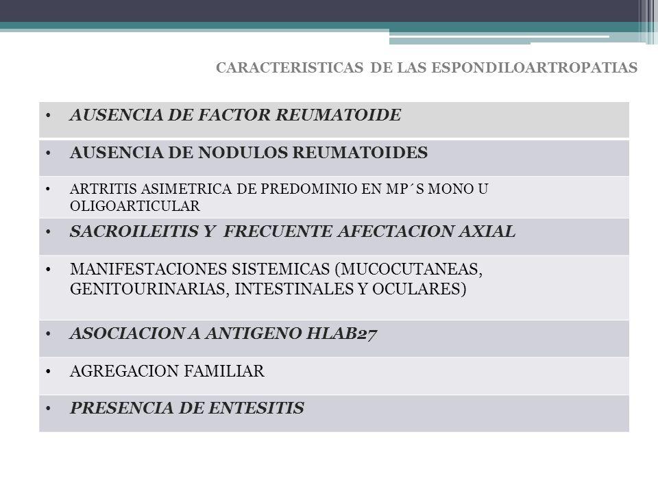 AUSENCIA DE FACTOR REUMATOIDE AUSENCIA DE NODULOS REUMATOIDES