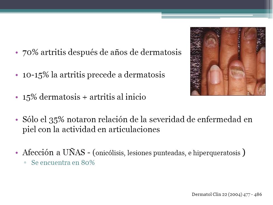70% artritis después de años de dermatosis