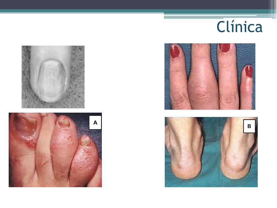 Clínica Dermatol Clin 22 (2004) 477 - 486