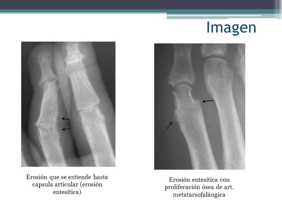Imagen Erosión que se extiende hasta capsula articular (erosión entesítica) Erosión entesítica con proliferación ósea de art. metatarsofalángica.