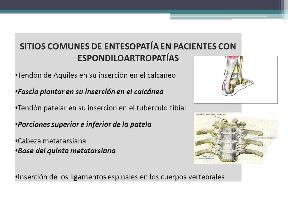 SITIOS COMUNES DE ENTESOPATÍA EN PACIENTES CON ESPONDILOARTROPATÍAS