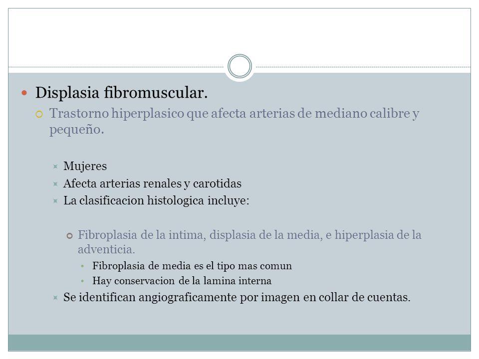 Displasia fibromuscular.