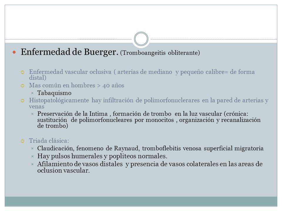 Enfermedad de Buerger. (Tromboangeitis obliterante)