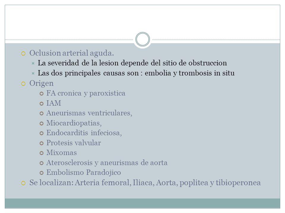 Oclusion arterial aguda.