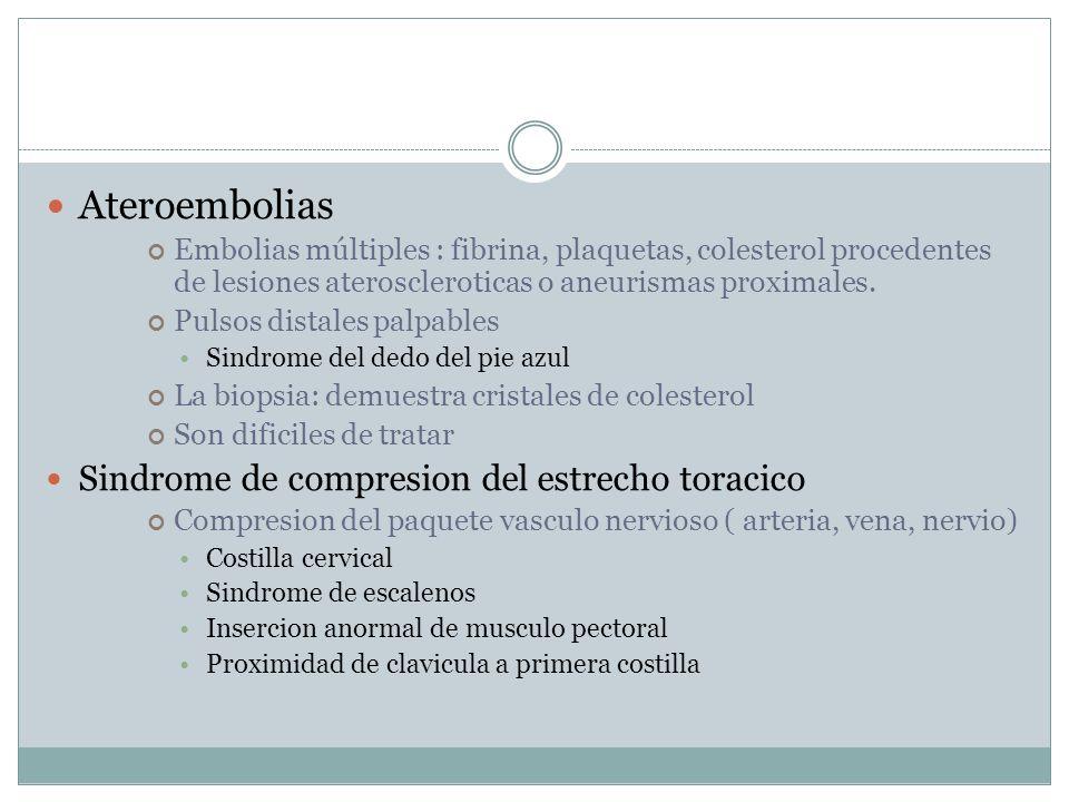 Ateroembolias Sindrome de compresion del estrecho toracico