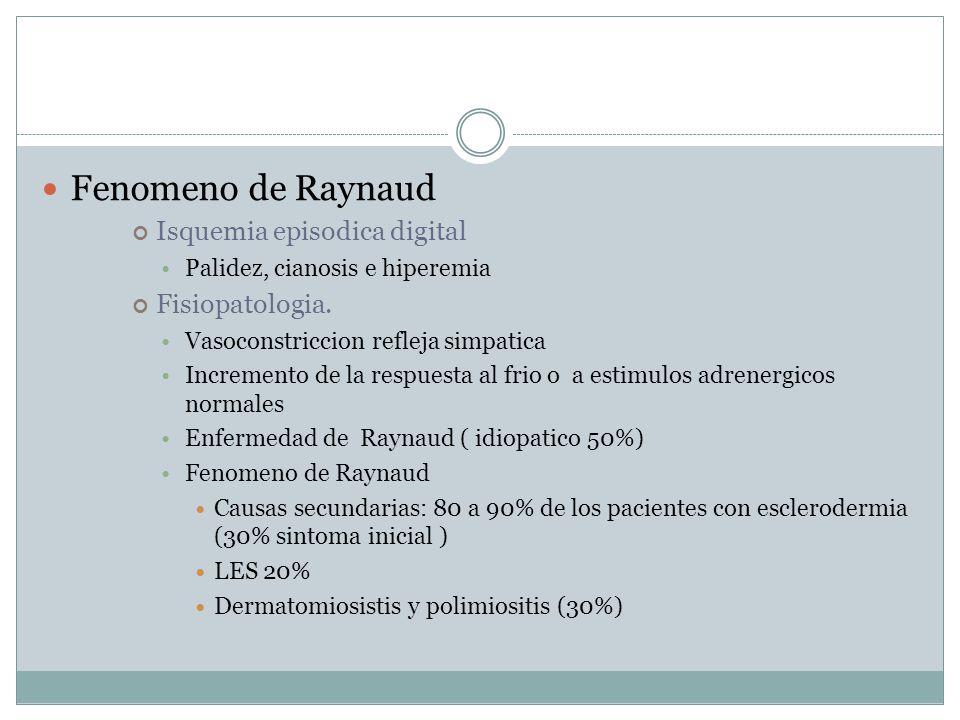 Fenomeno de Raynaud Isquemia episodica digital Fisiopatologia.