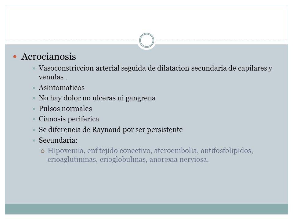 Acrocianosis Vasoconstriccion arterial seguida de dilatacion secundaria de capilares y venulas . Asintomaticos.