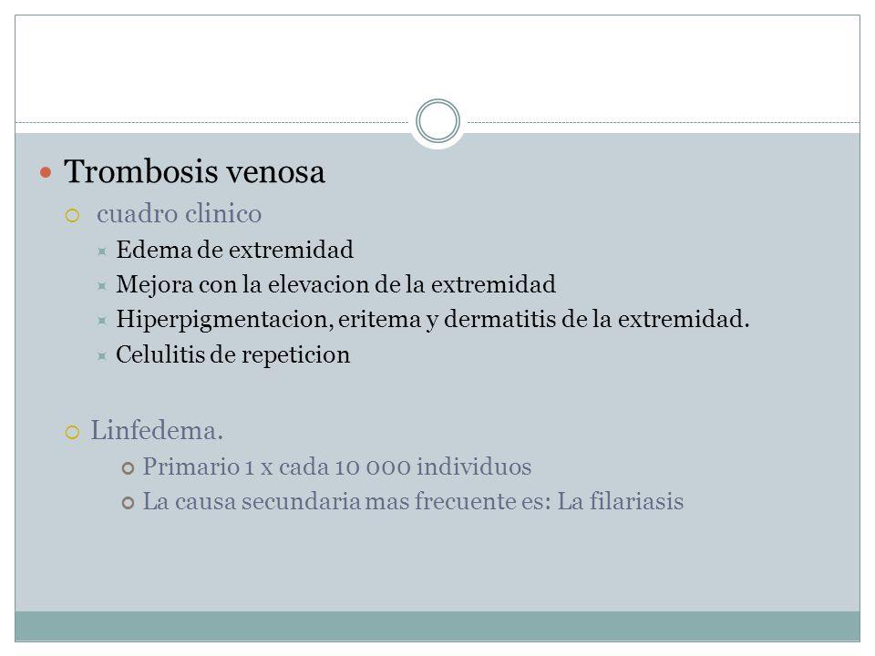 Trombosis venosa cuadro clinico Linfedema. Edema de extremidad