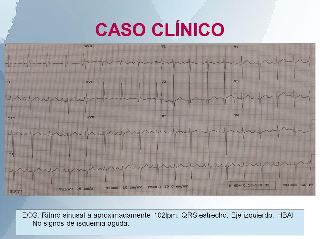 CASO CLÍNICOECG: Ritmo sinusal a aproximadamente 102lpm.