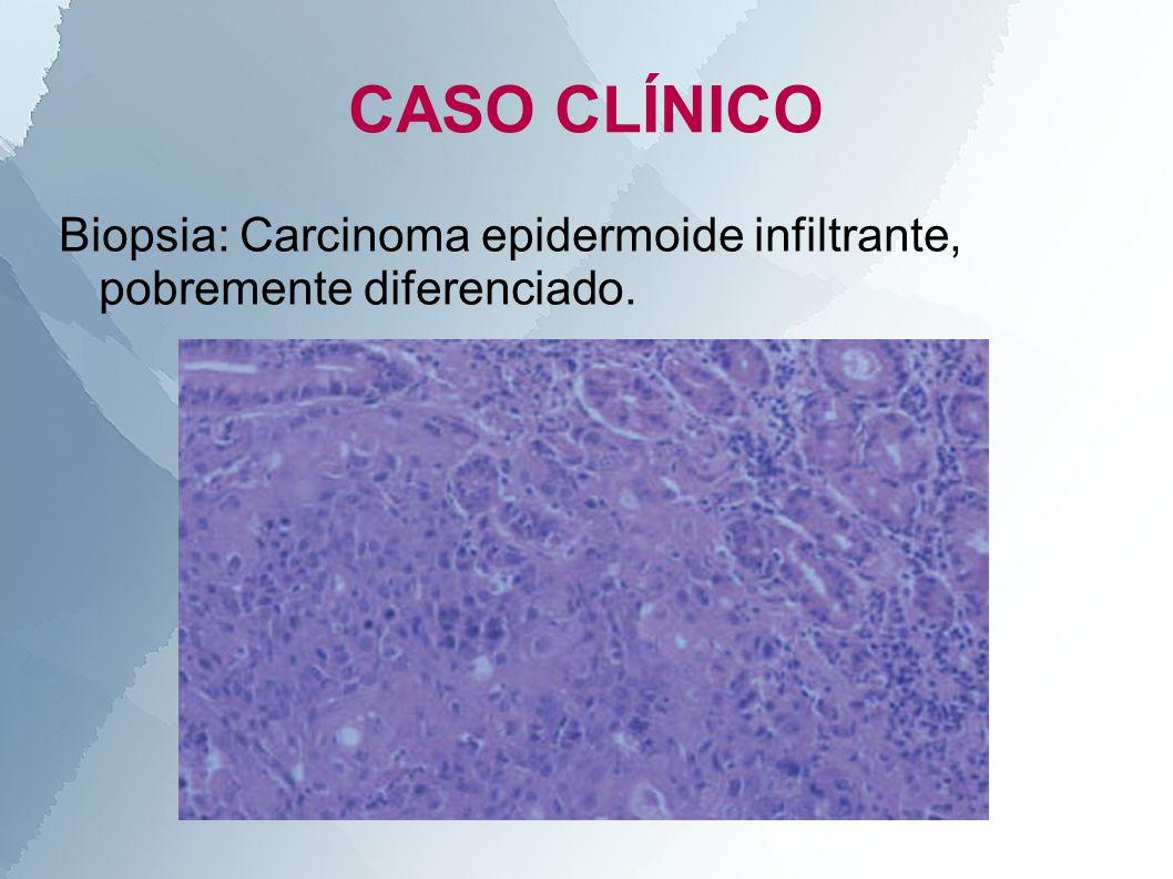 CASO CLÍNICO Biopsia: Carcinoma epidermoide infiltrante, pobremente diferenciado.