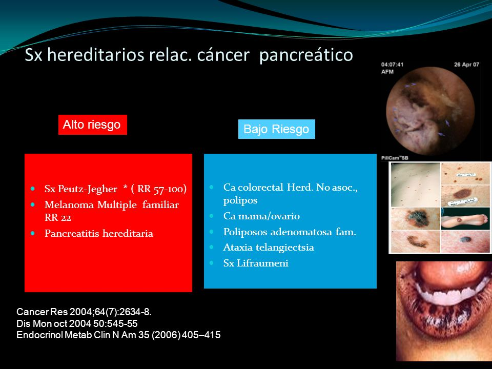Sx hereditarios relac. cáncer pancreático