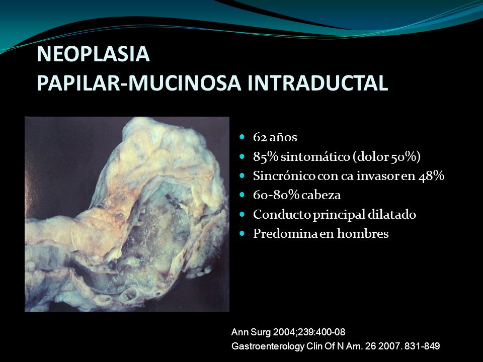 NEOPLASIA PAPILAR-MUCINOSA INTRADUCTAL