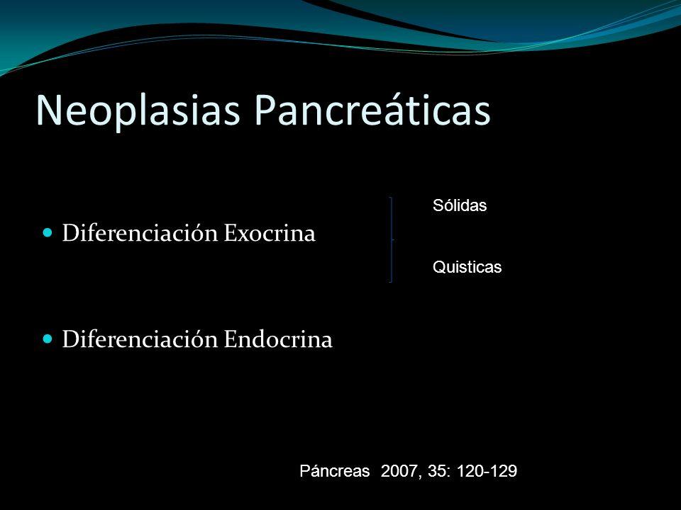 Neoplasias Pancreáticas