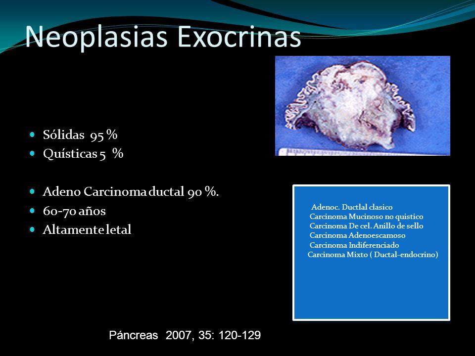 Neoplasias Exocrinas Sólidas 95 % Quísticas 5 %