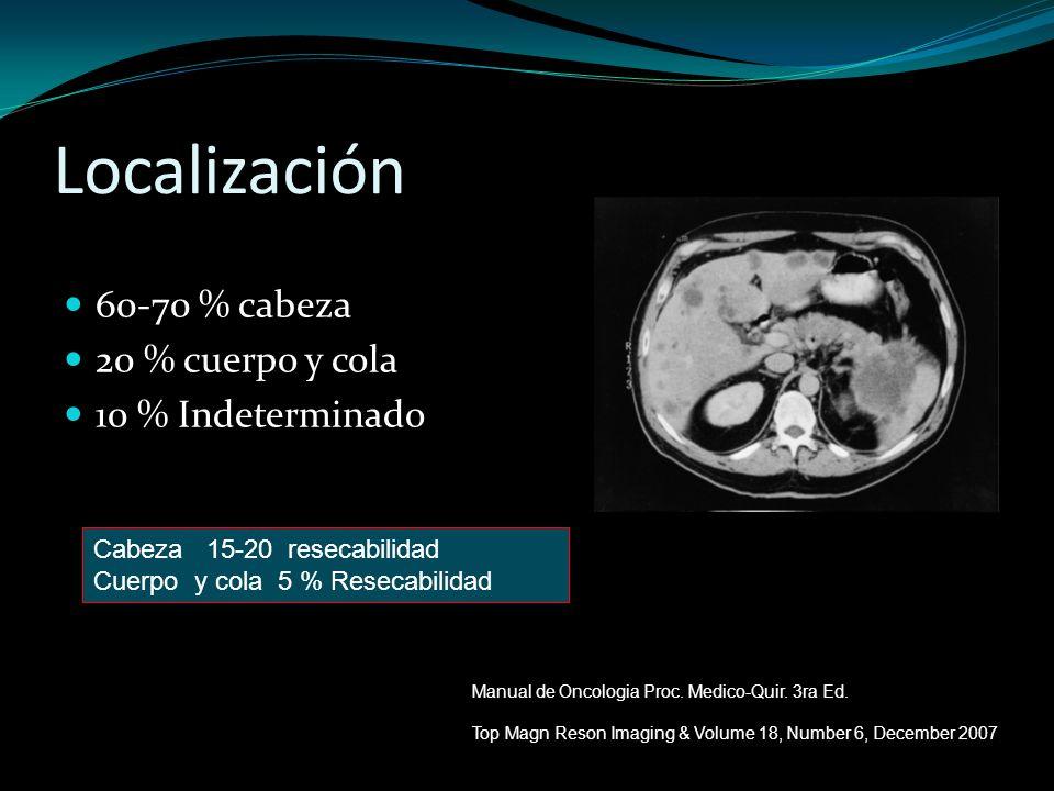 Localización 60-70 % cabeza 20 % cuerpo y cola 10 % Indeterminado