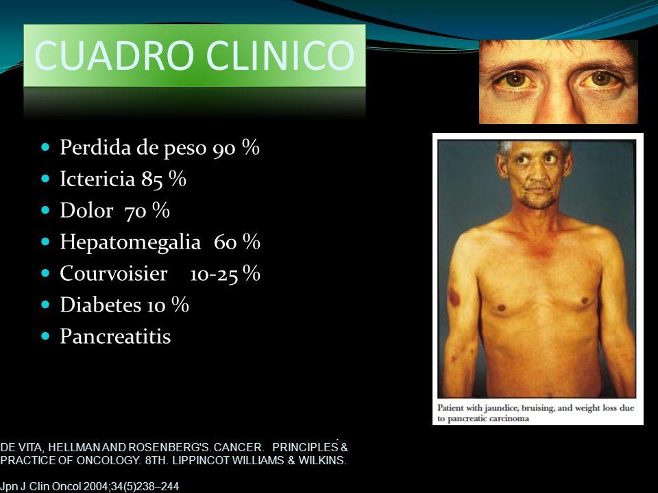 CUADRO CLINICO Perdida de peso 90 % Ictericia 85 % Dolor 70 %