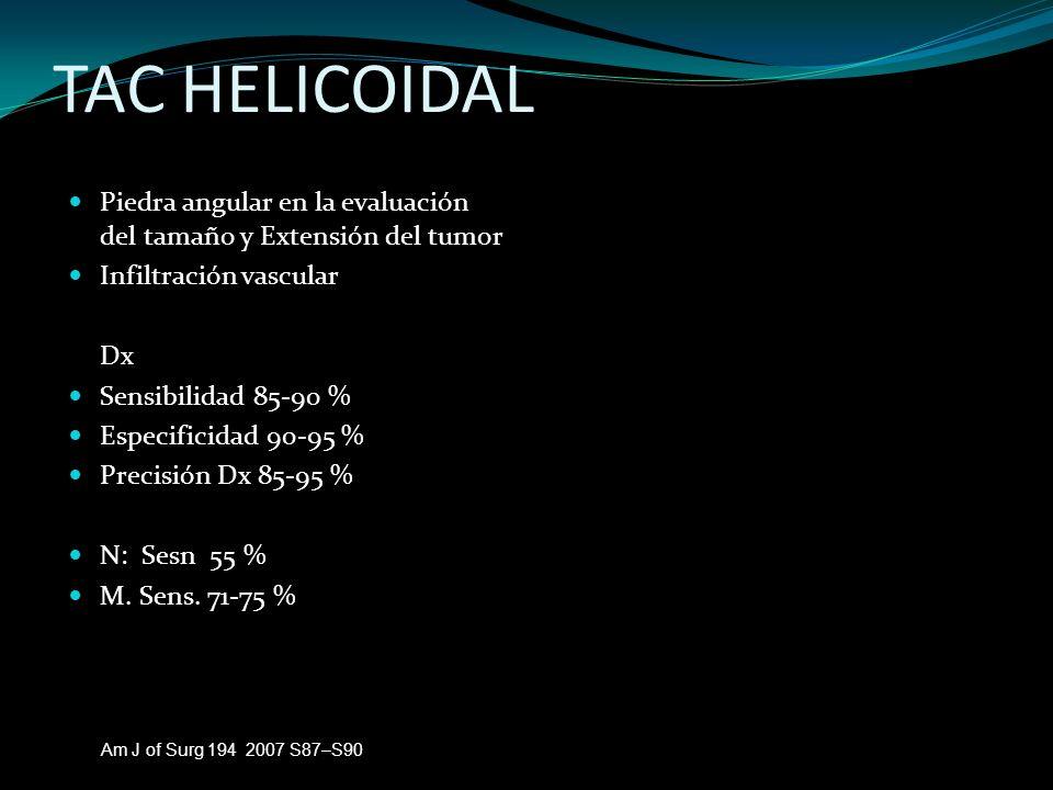 TAC HELICOIDAL Piedra angular en la evaluación del tamaño y Extensión del tumor. Infiltración vascular.