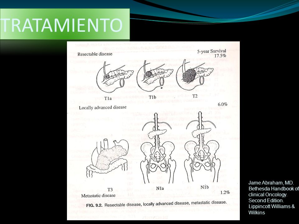 TRATAMIENTO Jame Abraham, MD. Bethesda Handbook of clinical Oncology.