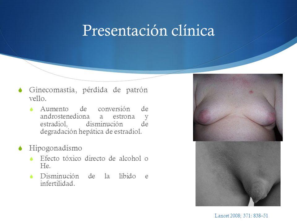 Presentación clínica Ginecomastia, pérdida de patrón vello.