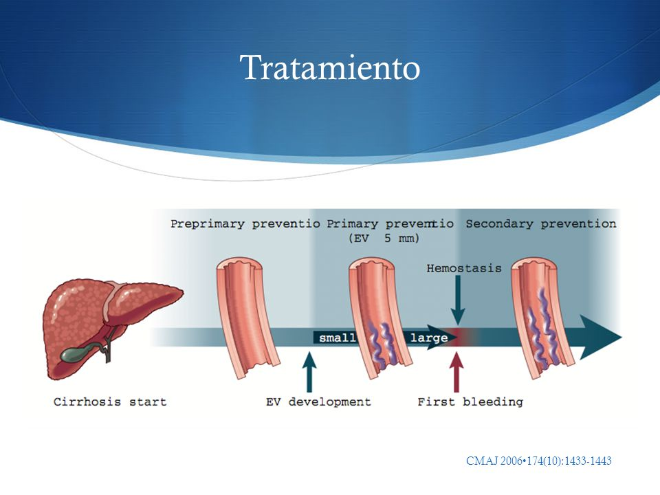 Tratamiento CMAJ 2006•174(10):1433-1443