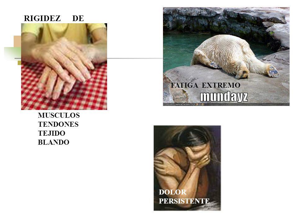RIGIDEZ DE FATIGA EXTREMO MUSCULOS TENDONES TEJIDO BLANDO