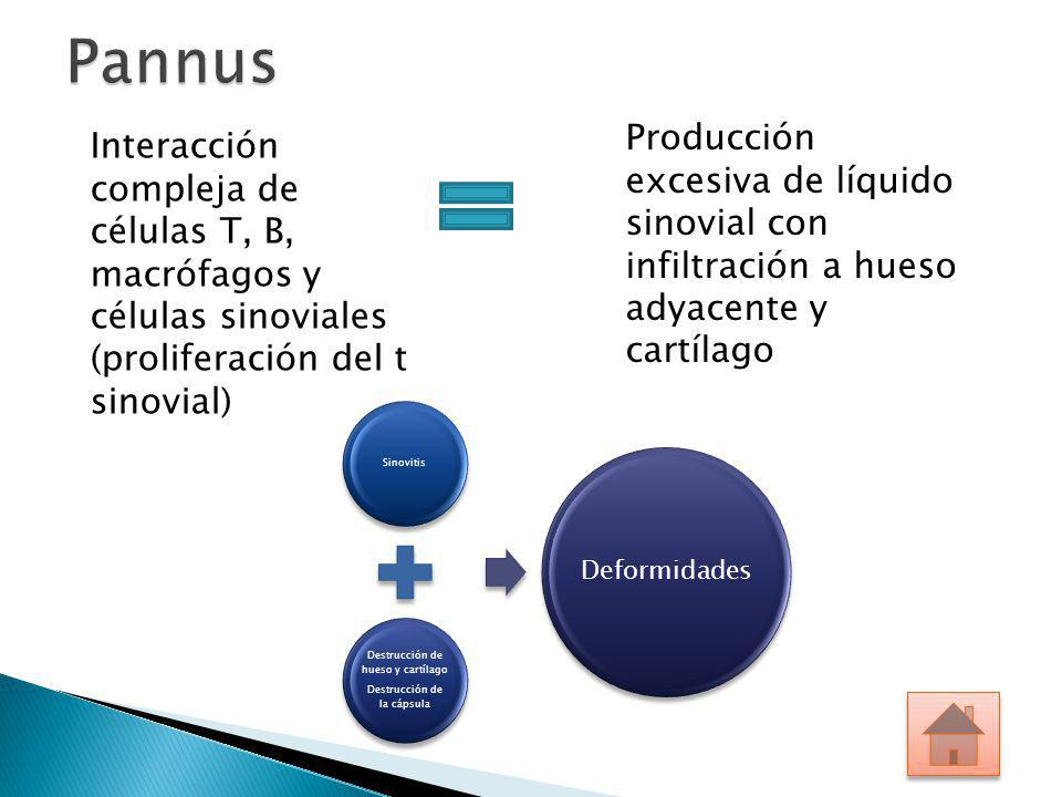 Pannus Producción excesiva de líquido sinovial con infiltración a hueso adyacente y cartílago.