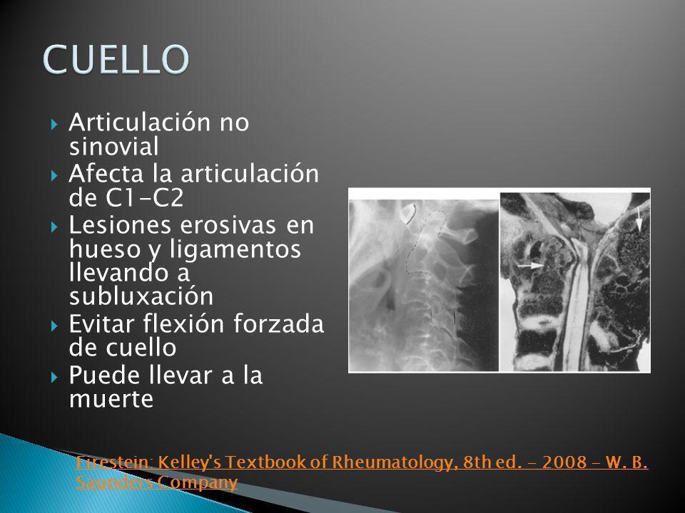 CUELLO Articulación no sinovial Afecta la articulación de C1-C2