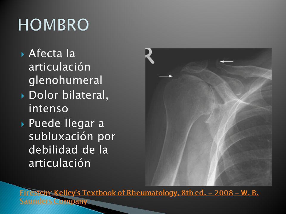 HOMBRO Afecta la articulación glenohumeral Dolor bilateral, intenso