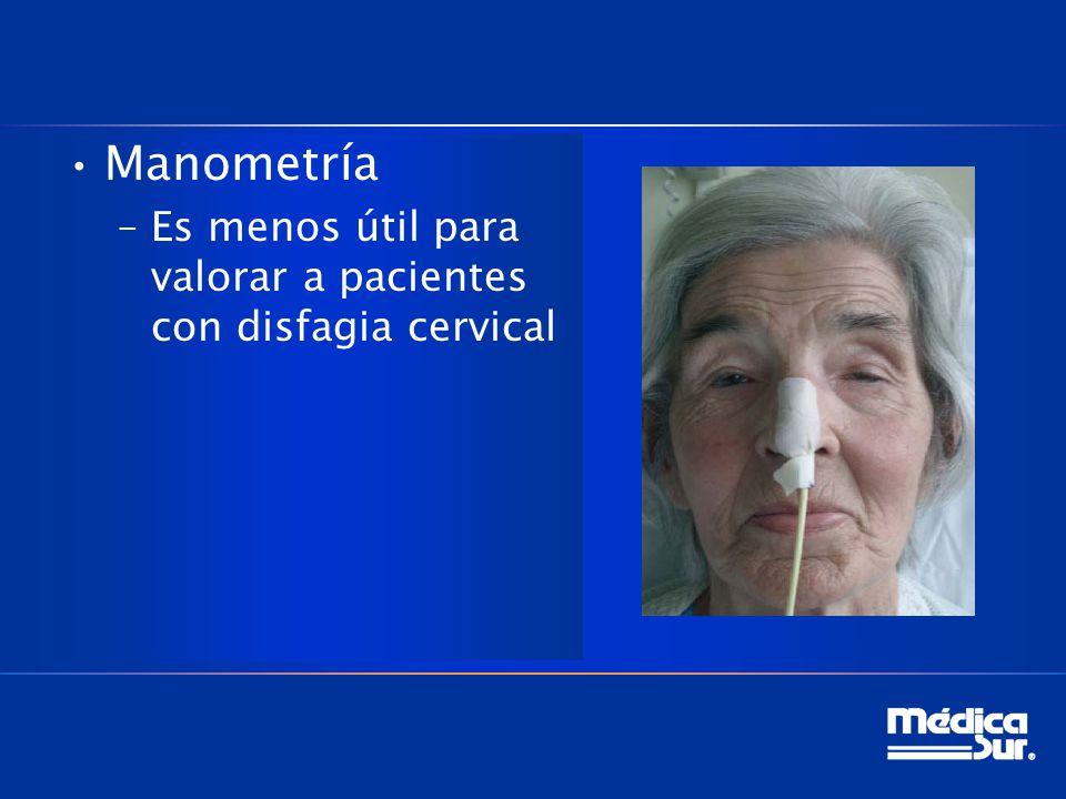 Manometría Es menos útil para valorar a pacientes con disfagia cervical