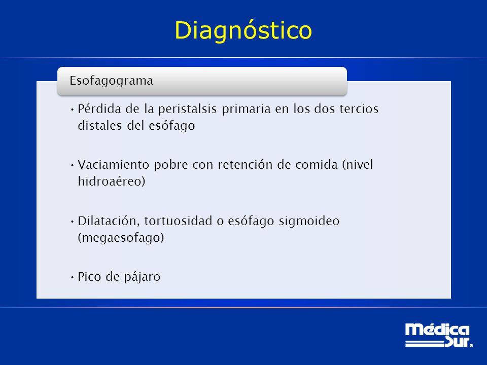 Diagnóstico Esofagograma