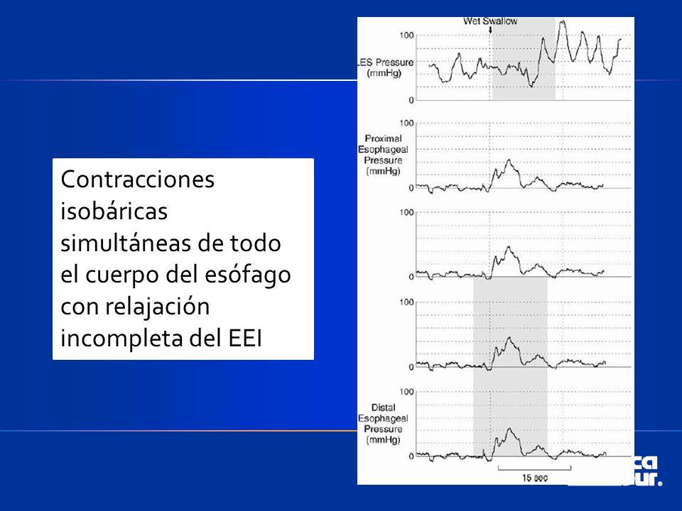 Contracciones isobáricas simultáneas de todo el cuerpo del esófago con relajación incompleta del EEI